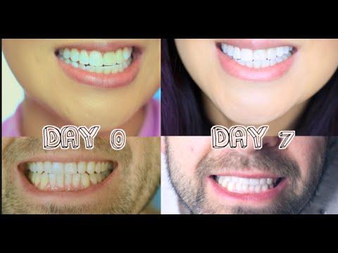 4 طرق طبيعية لأسنان بيضاء كاللؤلؤ
