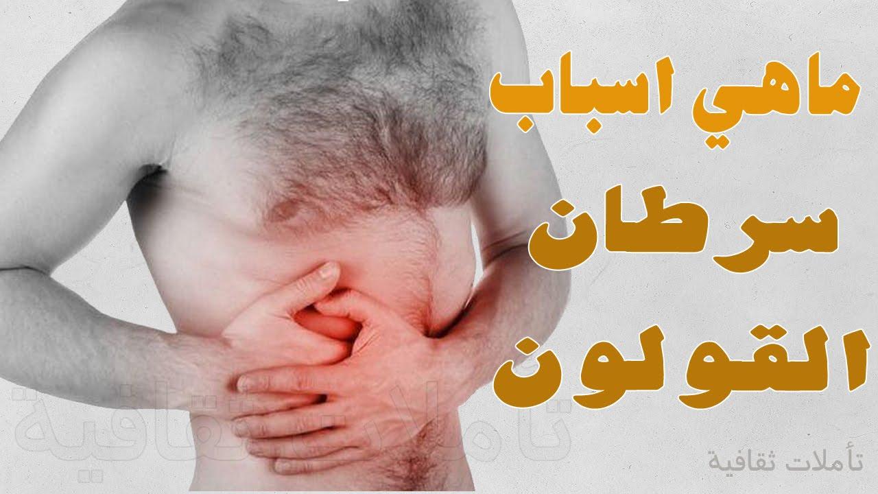 7 أسباب تؤدي إلى الإصابة بسرطان القولون
