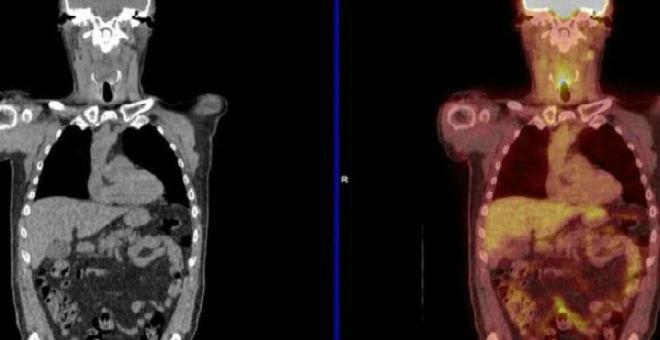 تقنية جديدة قد تجنب المصابين بالسرطان العمليات الجرحية