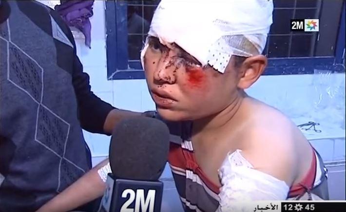 إصابة 48 تلميذا في حادثة سير مروعة بتنغير