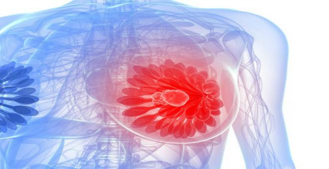 في سابقة عالمية.. العلاج المناعي يشفي مصابة بسرطان الثدي!