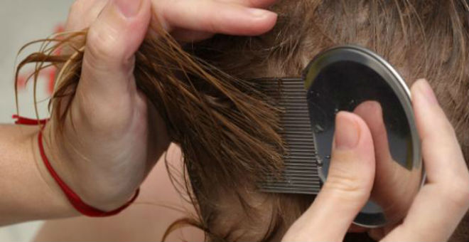 علاجات طبيعية للتخلص من قمل الرأس نهائيا