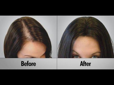 البصل.. لإنبات فراغات الشعر وعلاج الصلع