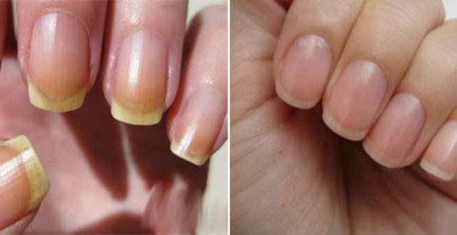 خلطات سحرية لعلاج اصفرار الأظافر في وقت قياسي