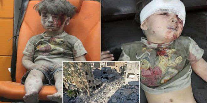 صورة الطفل السوري عمران