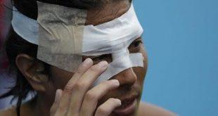 مباراة كرة الماء النسائية تتحول إلى حصة ملاكمة وضرب وجرح في اولمبياد ريو.