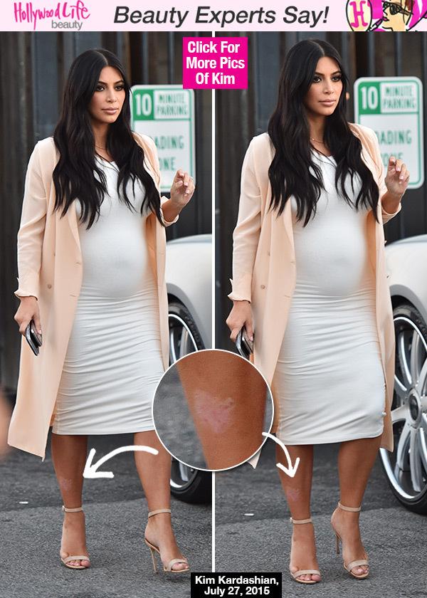 kim-kardashian-psorisis-pregnant-spl-lead
