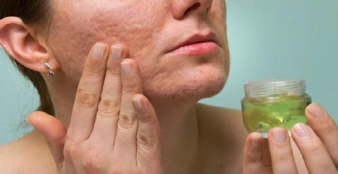 أقوى الوصفات الفعالة للتخلص من ندبات الوجه طبيعيا وإلى الأبد