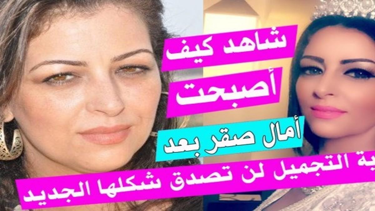 شاهد كيف أصبحت أمال صقر بعد عملية التجميل لن تصدق شكلها الجديد