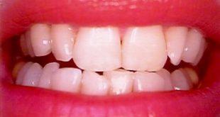 شاهد.. طريقة رهيبة ومجربة لتبيض الأسنان خلال 10 دقائق