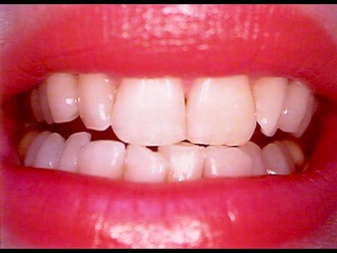 شاهد.. طريقة رهيبة ومجربة لتبيض الأسنان خلال 10 دقائق فقط!!