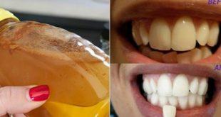 أسنان بيضاء