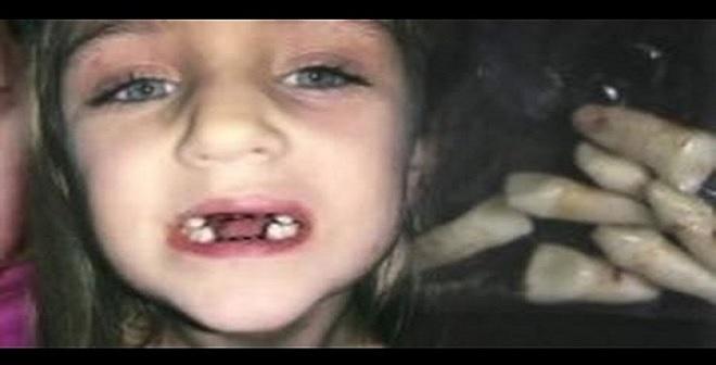 شكّت بطبيب الأسنان فصوّرت لتكتشف ماذا يفعل بابنتها.. لن تصدقوا ماذا فعل!