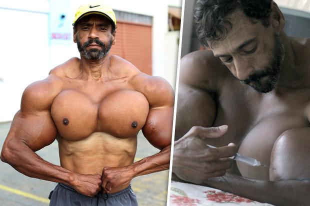 حقن عضلاته بمنشطات 5 سنوات فتحول إلى صاحب أغرب جسد يمكن أن تشاهده