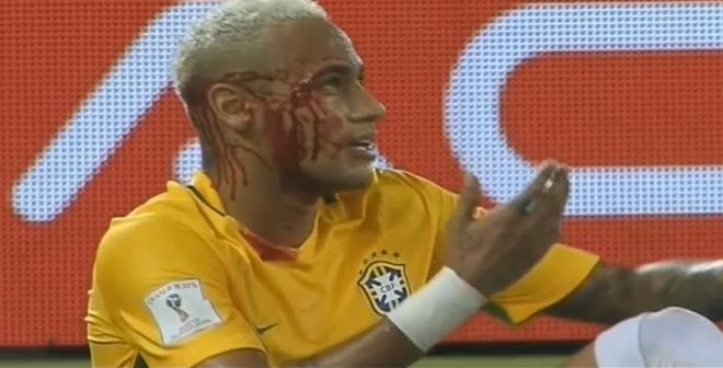 بالفيديو.. لحظة إصابة نيمار خلال مباراة منتخب بلاده أمام منتخب بوليفيا
