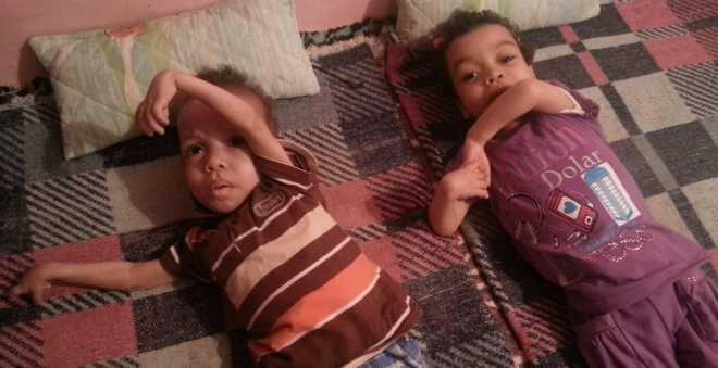 بالصور.. الإعاقة الجسدية والذهنية تغتال براءة طفلين شقيقين