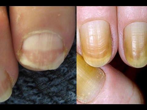 شكل الأظافر ولونها يكشف الإصابة بـ 7 أمراض خطيرة