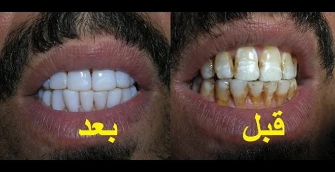 طريقة تبيض الاسنان خلال 10 دقائق فقط خلطة طبيعية صحية