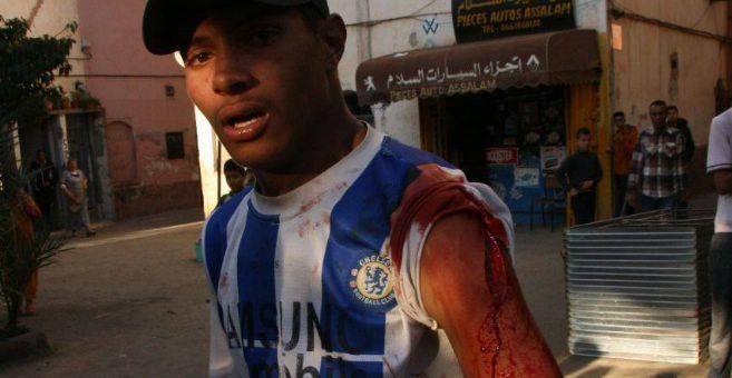 مواطن يتعرض للإعتداء بليساسفة بالدار البيضاء