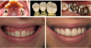 حشوة الأسنان