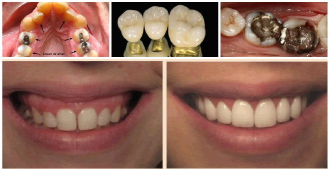 خطير.. لهذا السبب يجب استبدال حشوة أسنانكم الزئبقية في أقرب وقت !!