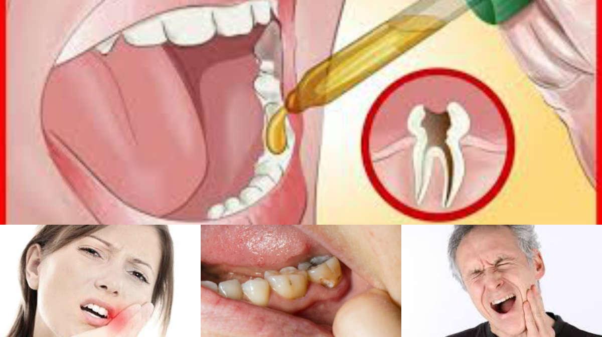 لا معاناة بعد اليوم.. وصفات منزلية بسيطة وسهلة لتهدئة آلام الأسنان !!