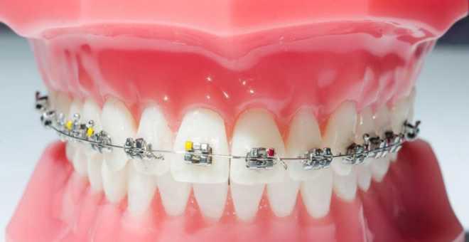 الكشف عن جهاز جديد يمكن من تقويم الأسنان في ظرف شهر ونصف فقط !!