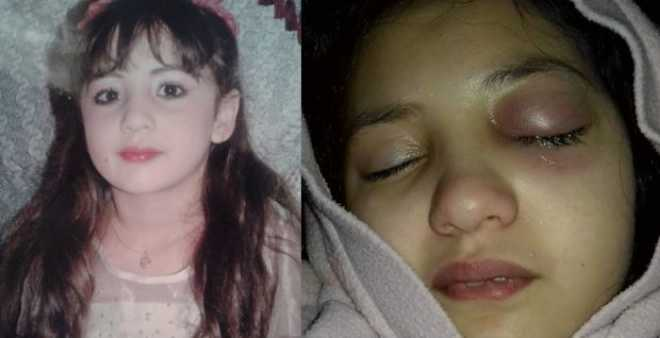 قضية الطفلة هبة.. الشرطة تطلق سراح المعلمة بسبب تأخر نتائج التشريح