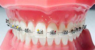 تقويم الأسنان