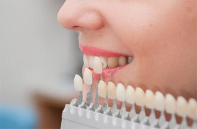 أطباء الأسنان يدعون المغاربة للتصالح مع أفواههم ويطلبون ''تغطية'' أفضل