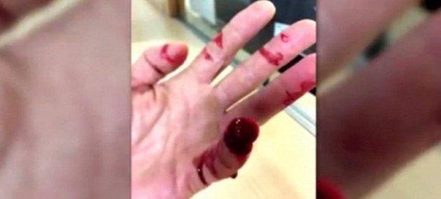 مغربي يبثر أصبع يد شرطي إسباني باسنانه