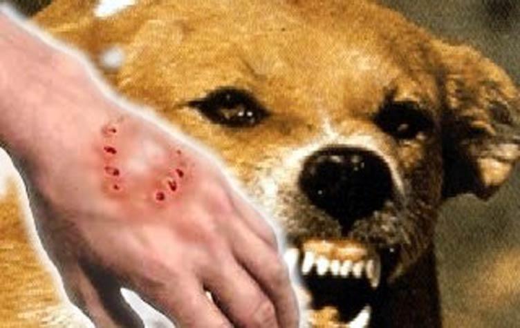 وزارة الصحة تطمئن ساكنة الرحامنة بعد عضة كلب مسعور