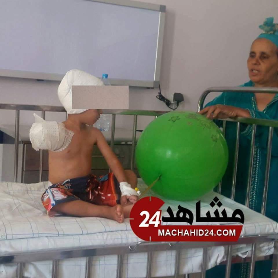 بالفيديو.. أب الطفل المبتورة يده في حادثة برشيد يناشد الوردي