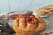 اعتقال اثنين من أفراد عصابة قطعت أصبعي صائغ وسرقت مجوهراته