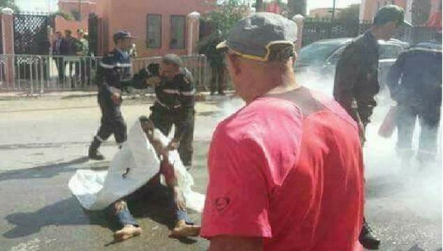 مراكش.. زوجان يحرقان جسديهما احتجاجا على تسريح مغتصب طفلتهما