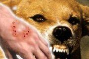 أكادير.. وفاة طفل وتلقيح 50 آخرين بسبب عضة كلب مسعور