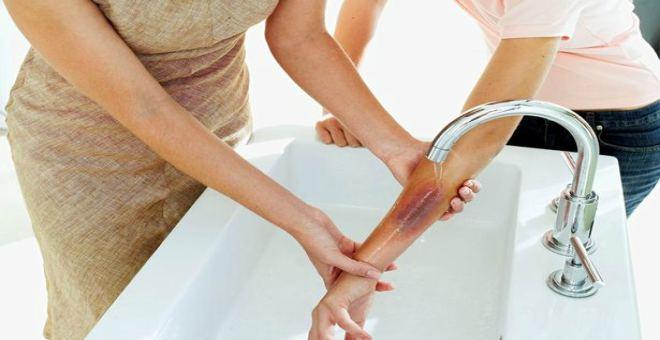 5 طرق خاطئة لعلاج الحروق منزليًا