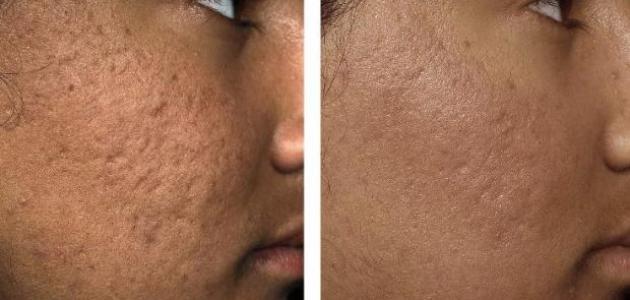تعرفي على أسباب ظهور حفر الوجه و كيفية علاجها !!