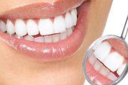 تعرفي على 7 أطعمة صحية تساعدك على الحفاظ على أسنانك !!