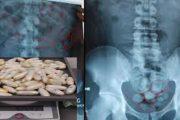 أطباء ابن رشد يستخرجون الكوكايين من أمعاء غيني