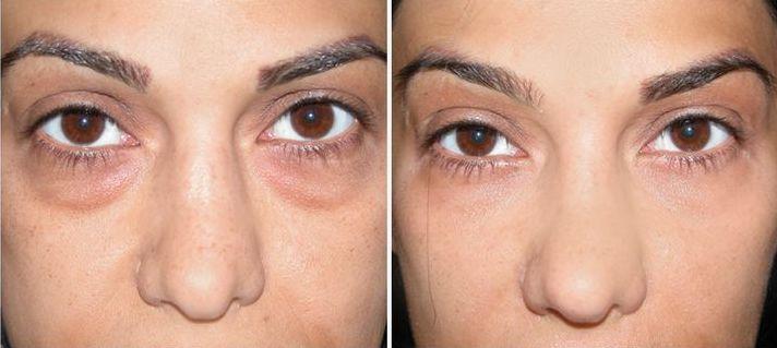 5 حيل للتخلص من الانتفاخات حول العينين