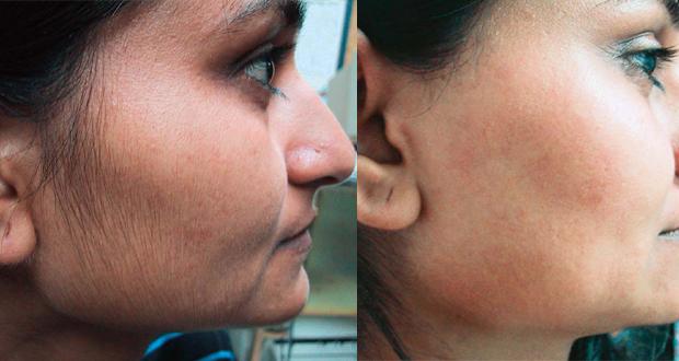 3 وصفات طبيعية للتخلص من شعر الوجه نهائيا