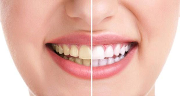 إليك وصفة طبيعية للتخلص من اصفرار الأسنان