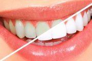 فواكه تساعد على تبييض الأسنان