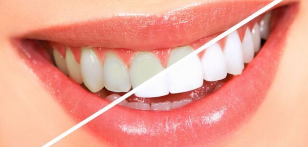 طريقة مذهلة لتفتيح الاسنان في وقت قياسي