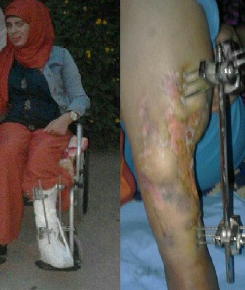 حملة فايسبوكية لانقاذ شابة بوادزم من بتر إحدى رجليها