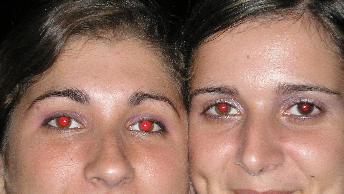 تعرف على سر العين الحمراء المرعبة في الصور الفوتوغرافية !!