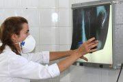 الهشاشة تقضي على جهود المغرب في محاربة داء السل