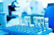 إجراء تحاليل المغاربة بمختبرات أجنبية.. ''باستور'' يوضح