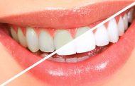 وصفة سهلة وسريعة لتتخلصي من مشكلة إصفرار الأسنان !
